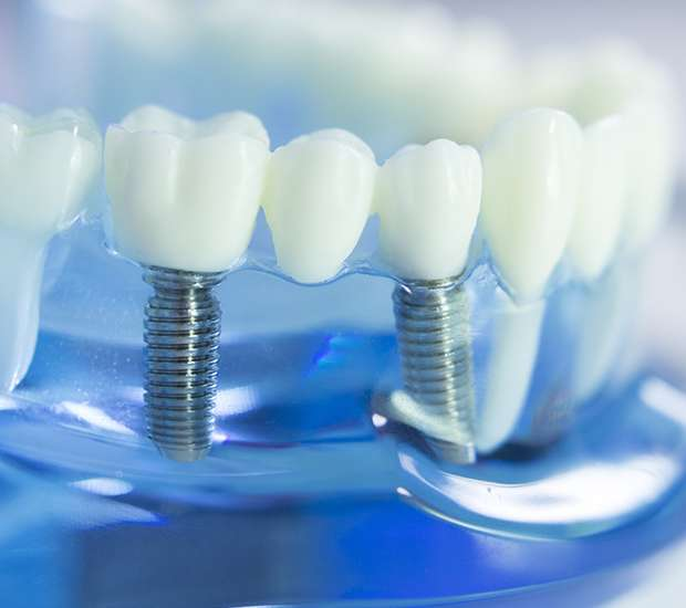 Ashburn Dental Implants